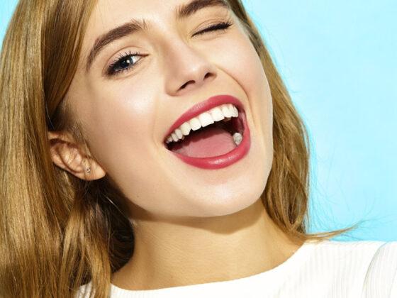 Qué son las carillas dentales. Carillas Dentales en Oviedo