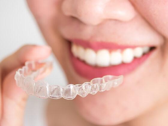ortodoncia invisible en oviedo. invisalign en oviedo. clinica dental naves