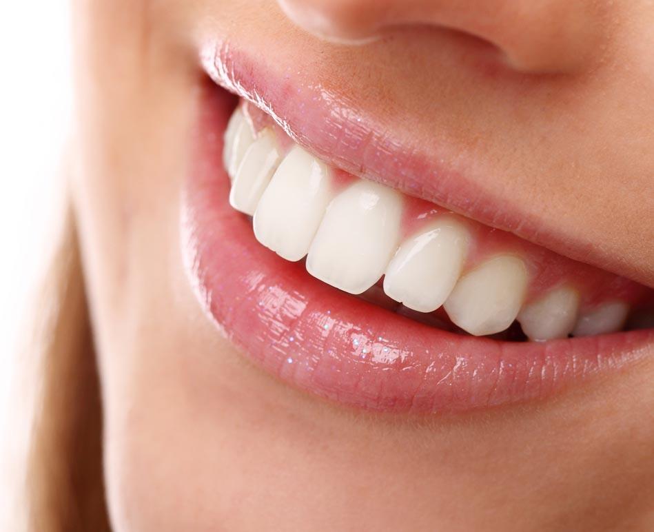 carillas dentales en oviedo. Dentista en Oviedo Juan Naves