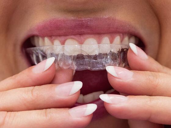 Clinica dental naves. Los mejores consejos para los tratamientos con Invisalign