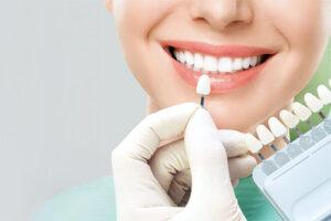 te explicamos como tener los dientes blancos en nuestr aclínica dental, especializada en carillas dentales en Oviedo
