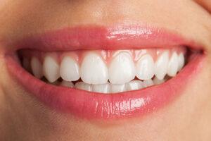 Clínica Dental Naves. Diseño de sonrisa adaptado a las características del paciente