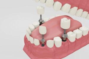 Clínica Dental Naves. Implantes dentales ofreciendo seguridad frente a los puentes dentales